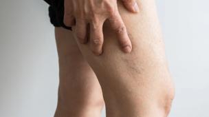 Após Covid, pacientes podem apresentar trombose: fique atento aos sinais